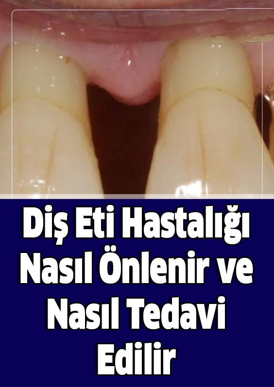 Diş Eti Hastalığı Nasıl Önlenir ve Nasıl Tedavi Edilir