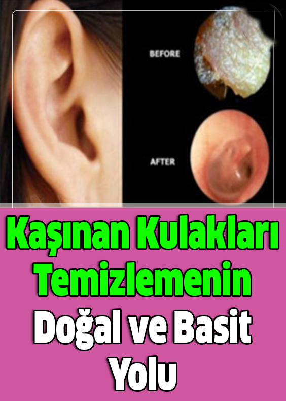 Kaşınan Kulakları Temizlemenin Doğal ve Basit Yolu
