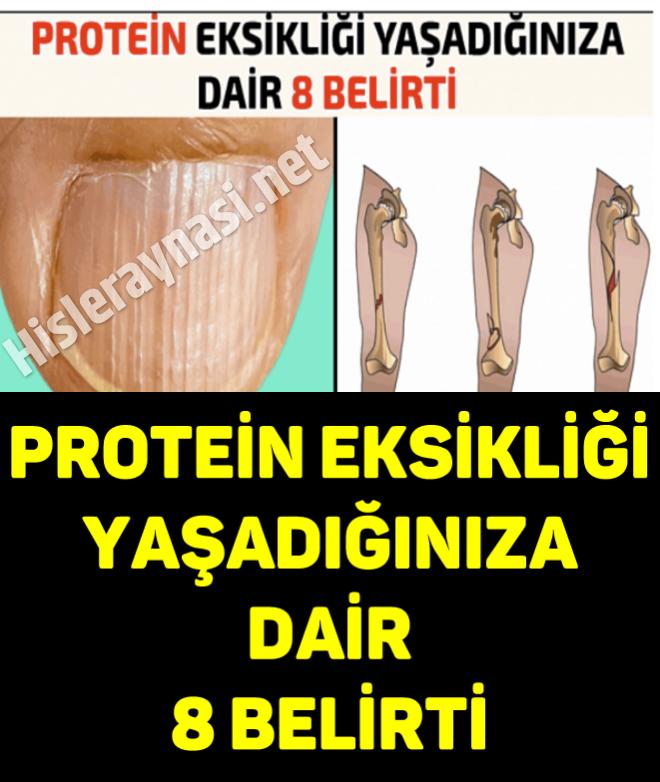 Protein Eksikliği Yaşadığınıza Dair 8 Belirti