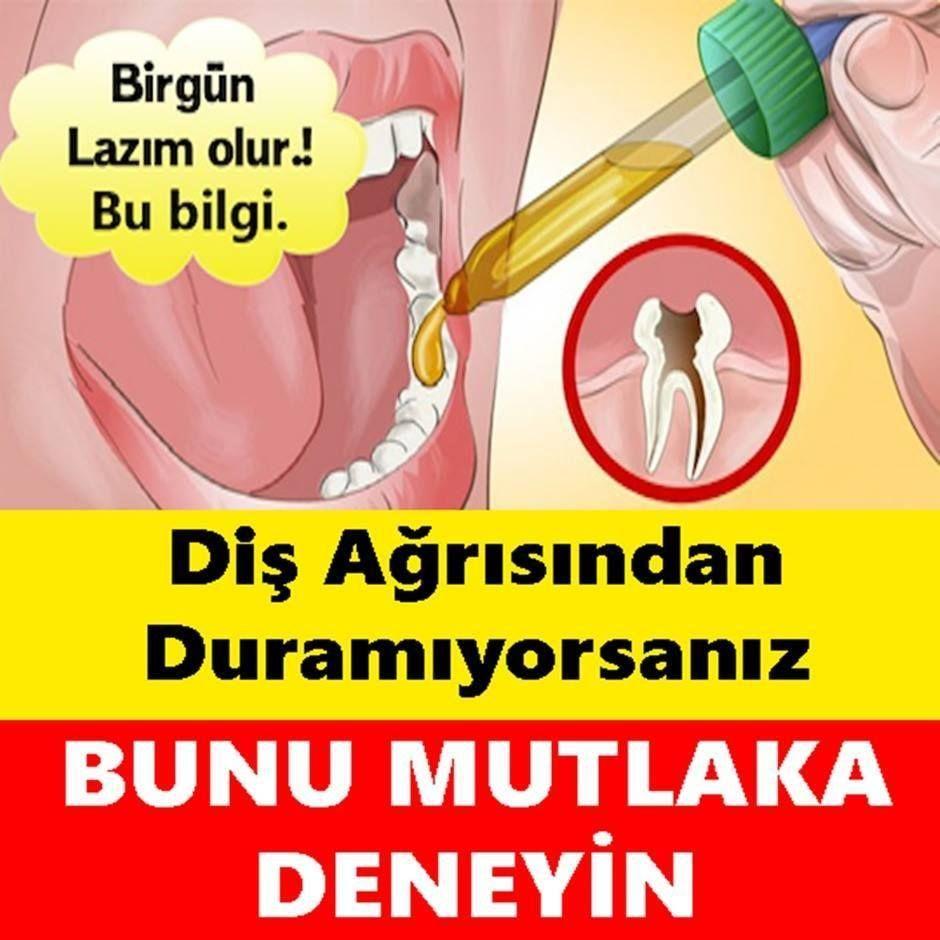 Diş ağrısından duramıyorsanız bunu denemelisiniz !!!